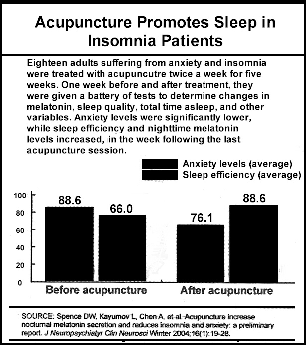 Acupuncture for Insomnia, Can Acupuncture Help Your Insomnia