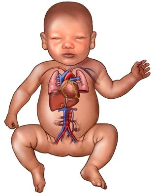 Infant Heart and Lung System