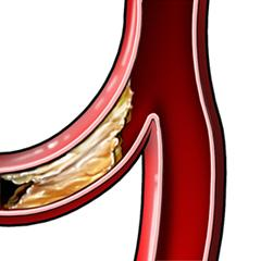Plaque Formation in Blood Vessel—Side Effect of High HDL Cholesterol