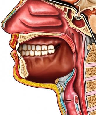 Mouth Cavity After Total Glossectomy