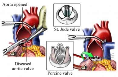 Aortic Valve Replacements: Mechanical vs. Tissue