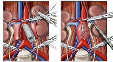 Abdominal Aortic Aneurysm Surgery