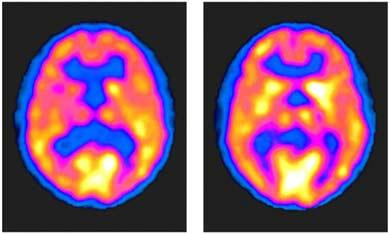 PET Scans of the Brain