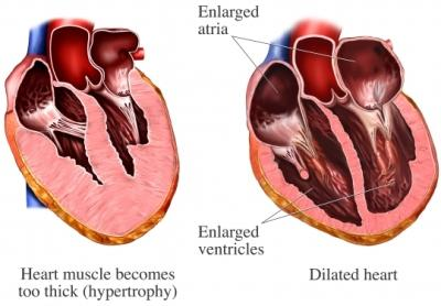 Abnormal Heart Walls
