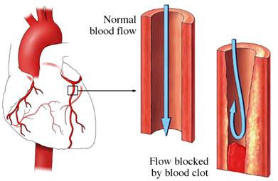 Blood Clots in the Heart