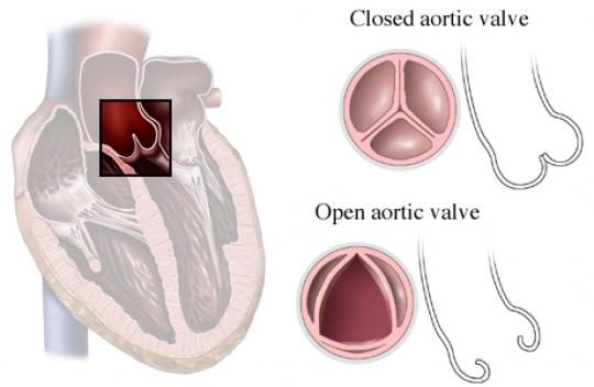 Aortic Valve–Opened and Closed