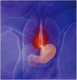Best Way To Get Rid Of Heartburn Bloating And Gas
