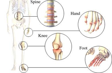 Joints Affected by Osteoarthritis