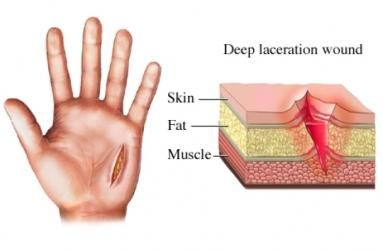 Laceration Wound of the Hand