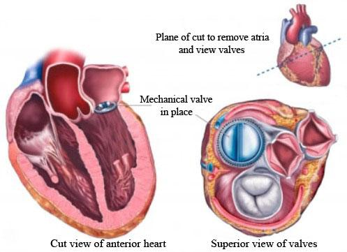 Mitral valve replacement best option
