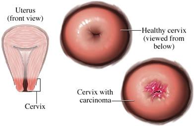 Squamous Cell Carcinoma of the Cervix