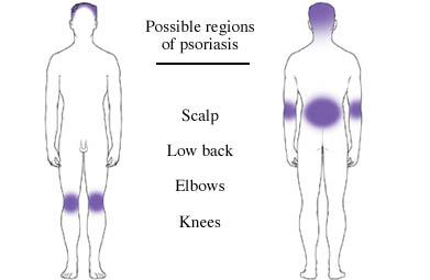 Possible Regions of Psoriasis