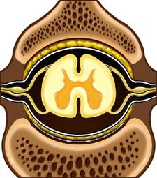 Cross-section of Vertebral Canal with Spinal Cord in the Center