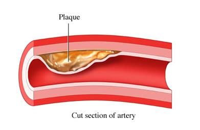 Plaque Due to Build-up of Lipids in an Artery